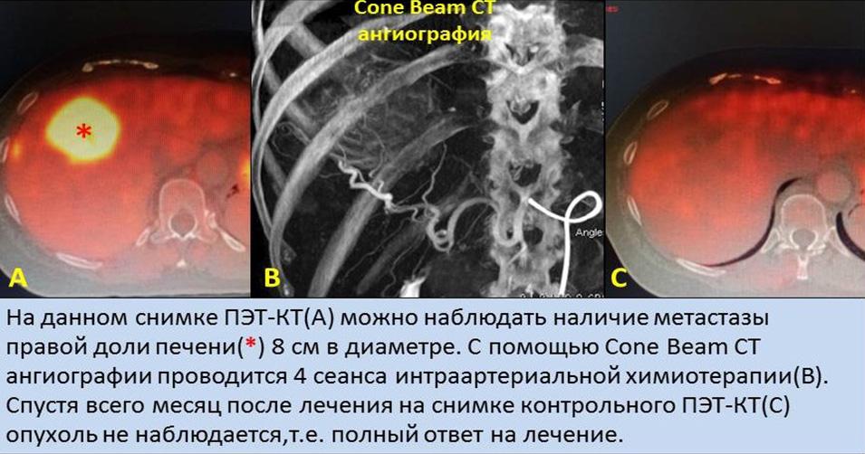 Tumor pechini