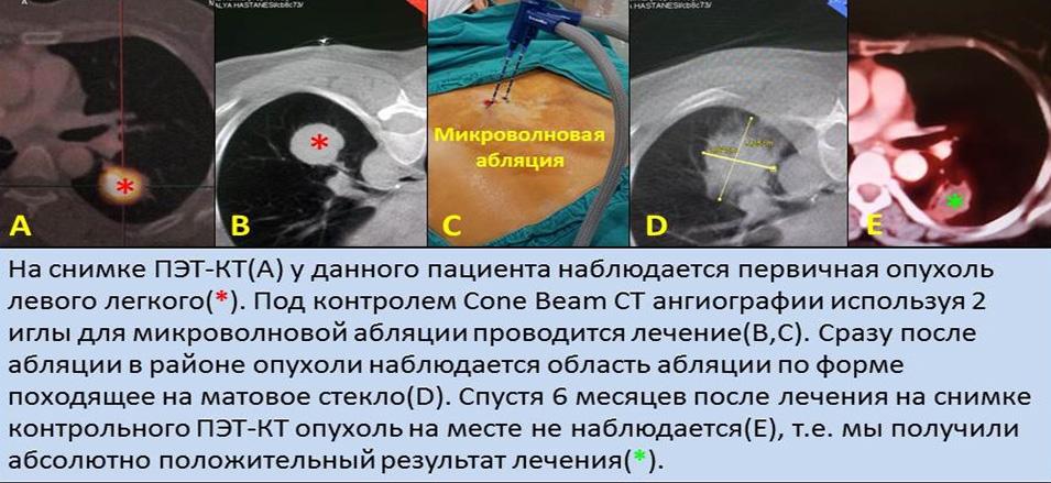 методы лечения рака отзывы форум Thermo-Soft рассчитано для